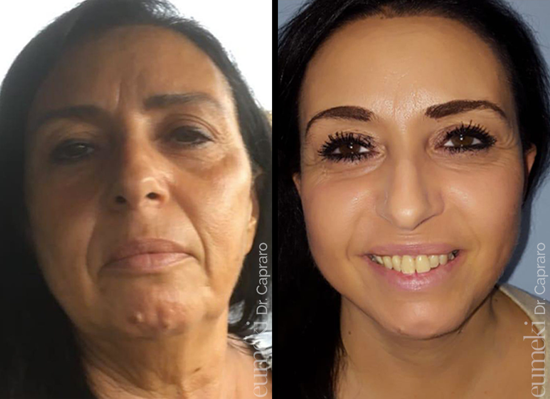 Caso 5 - Lifting viso collo - vista frontale