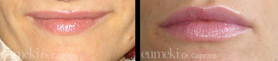 Caso 1 - Rimodellamento e aumento labbra con filler