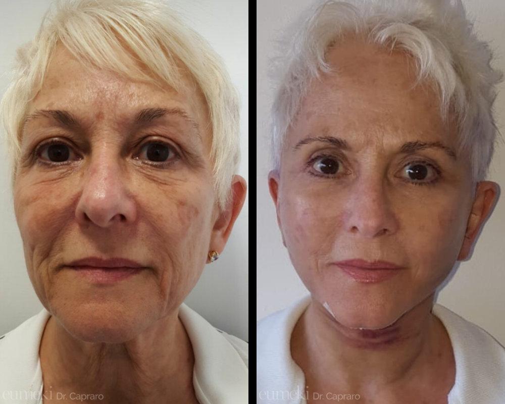 Caso 6 - Lifting viso collo - vista frontale