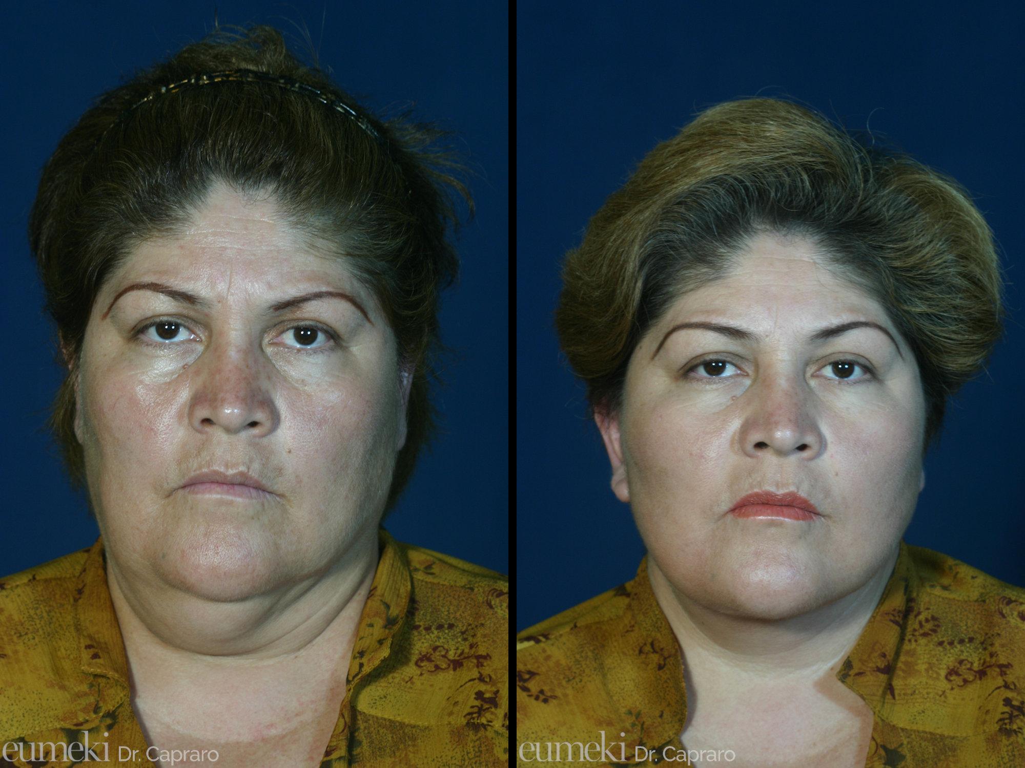 Caso 1 - Lifting viso e collo - frontale