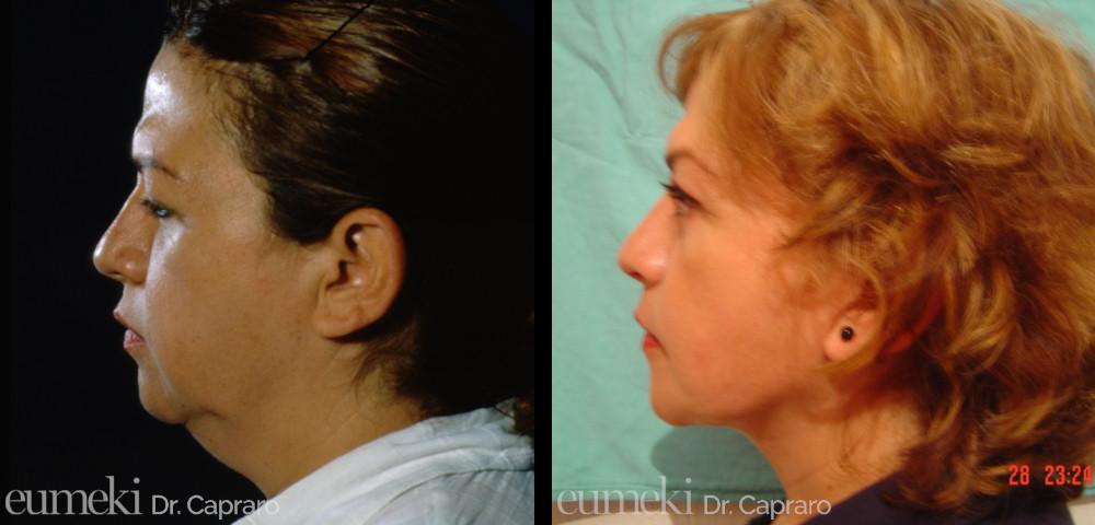 Caso 3 - Lifting viso e collo - laterale