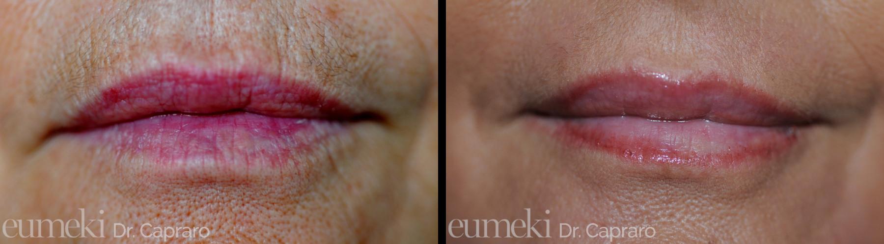 Caso 2 - Rimodellamento labbra con grasso e dermoabrasione - frontale