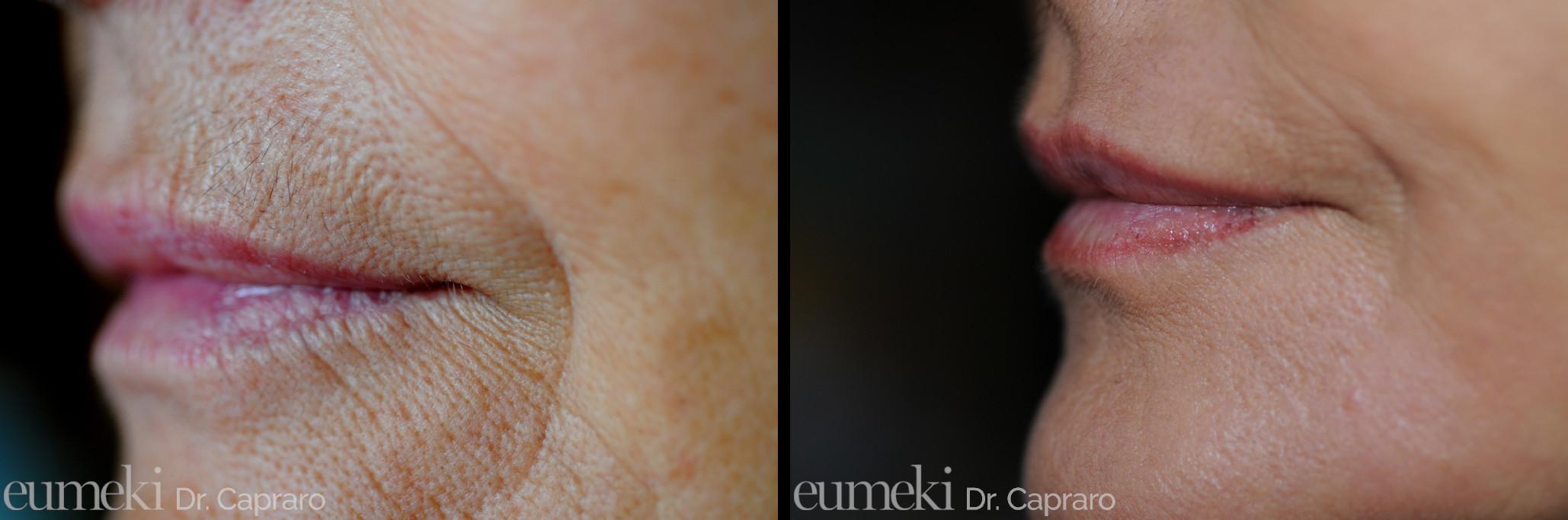 Caso 2 - Rimodellamento labbra con grasso e dermoabrasione - laterale