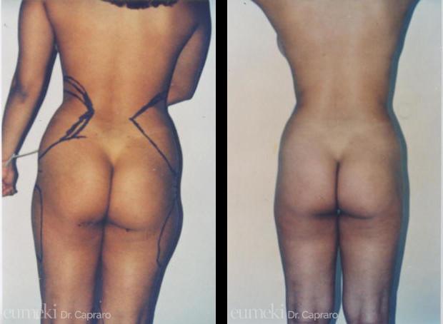 Caso 1 - Liposuzione liposcultura mastoplastica - posteriore