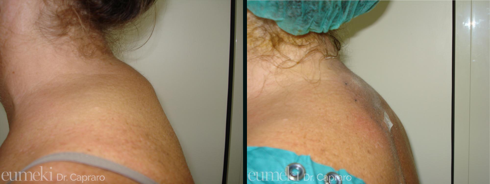 Caso 2 - Liposuzione schiena