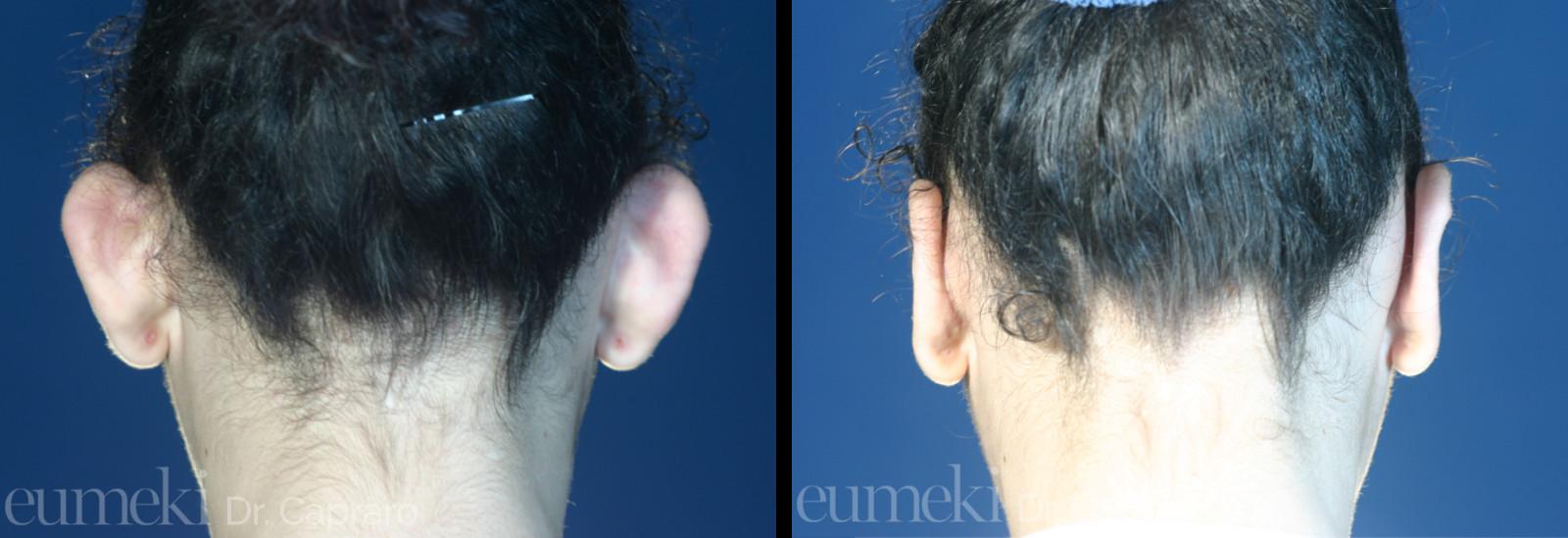 Plastica delle orecchie vista posteriore primo caso