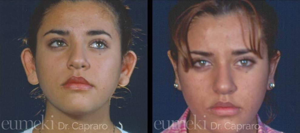 Plastica delle orecchie vista frontale secondo caso
