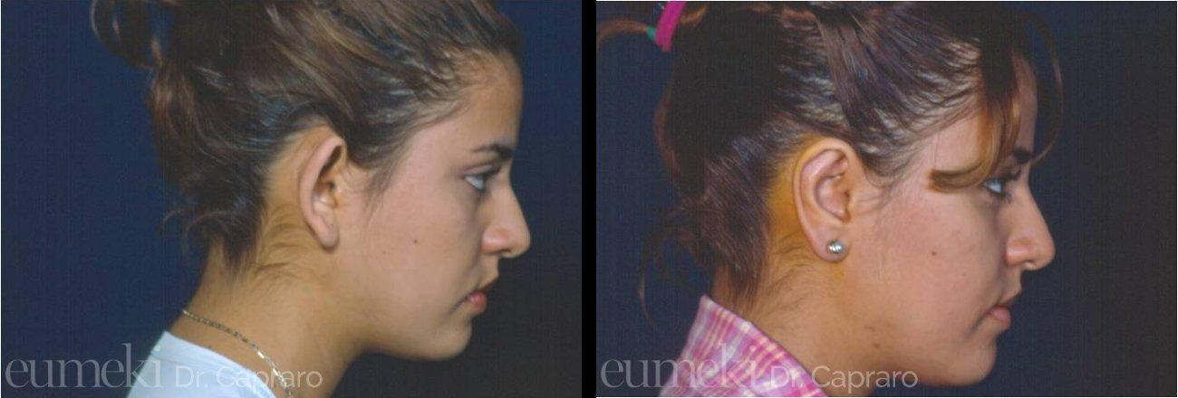Plastica delle orecchie vista lato destro secondo caso