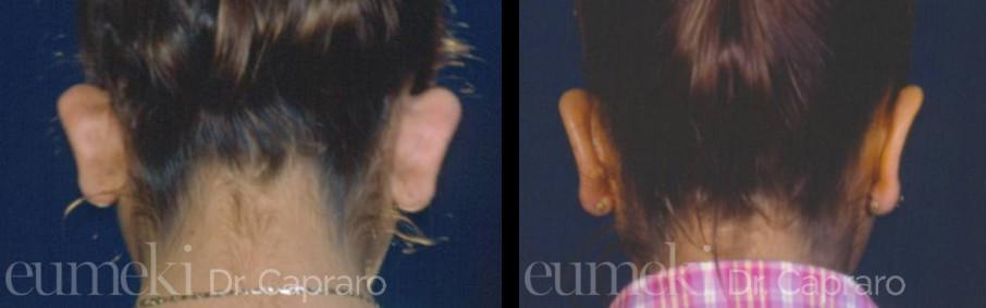 Plastica delle orecchie vista posteriore secondo caso