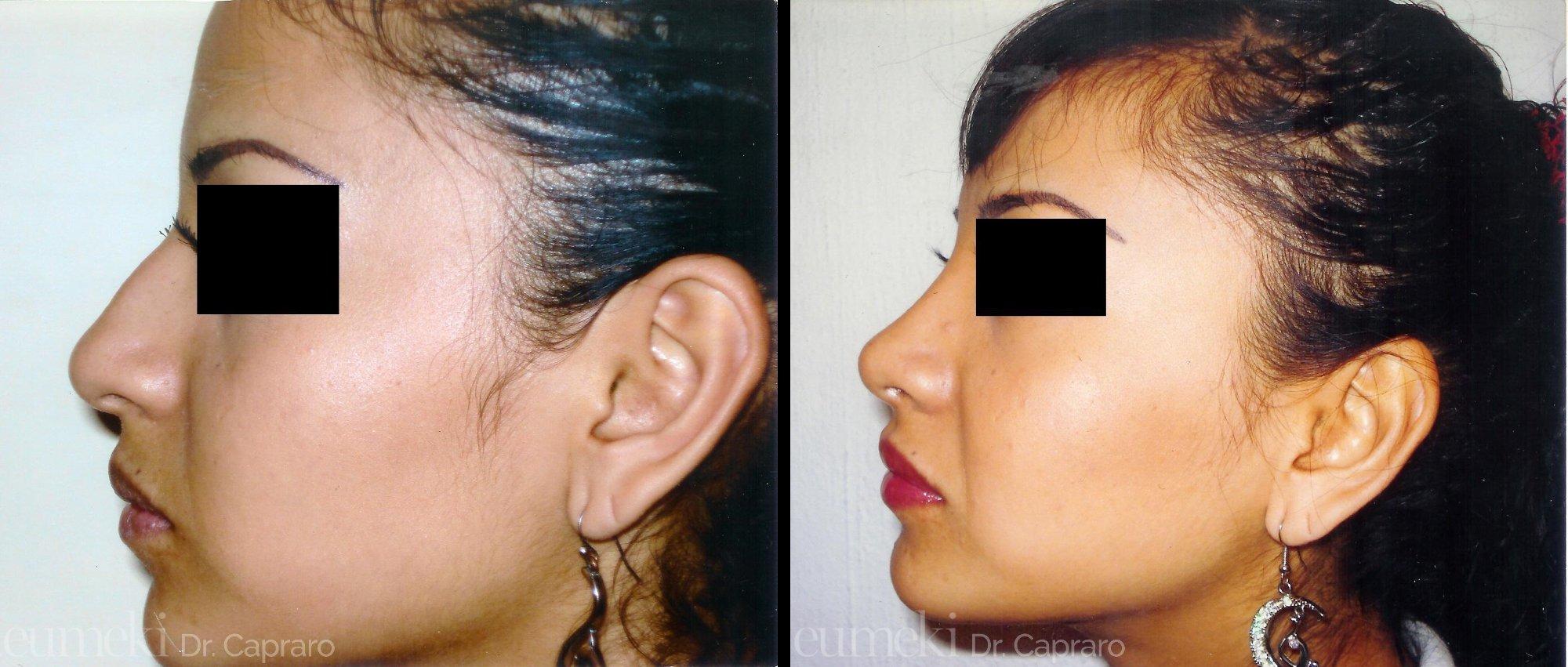 Plastica nasale quinto caso