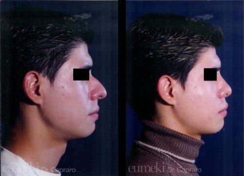 Plastica nasale settimo caso