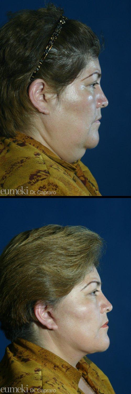 Caso 1 - Liposuzione collo e lifting viso