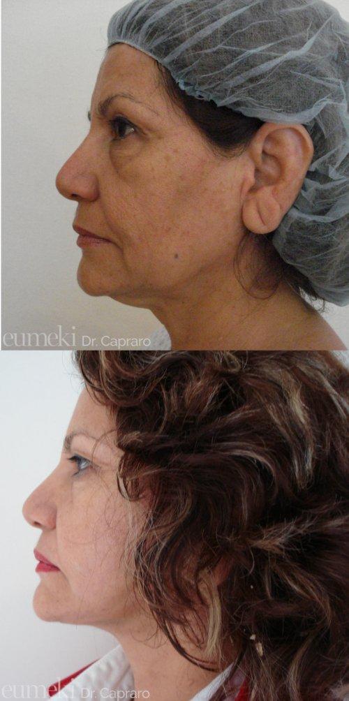 Caso 2 - Lifting viso e collo - laterale