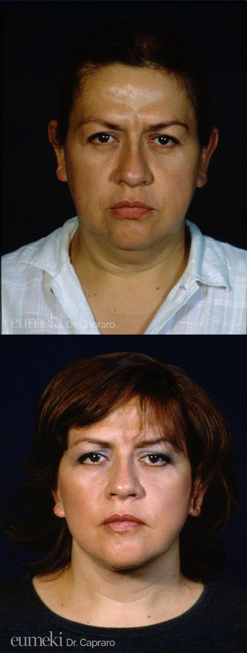 Caso 3 - Lifting viso e collo - frontale