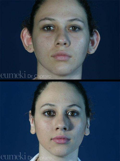 Plastica delle orecchie vista frontale primo caso