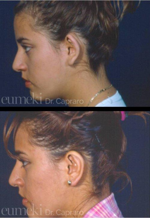 Plastica delle orecchie vista lato sinistro secondo caso