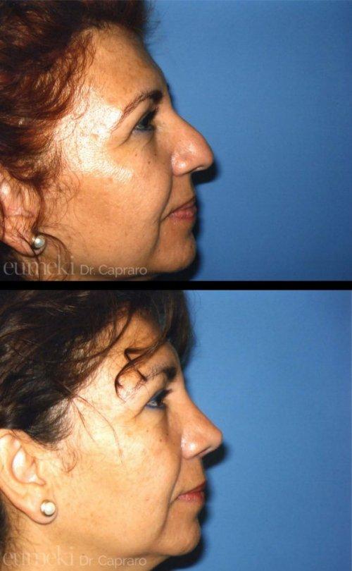 Plastica nasale primo caso