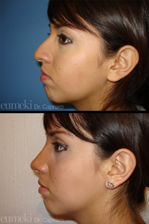 Plastica nasale secondo caso