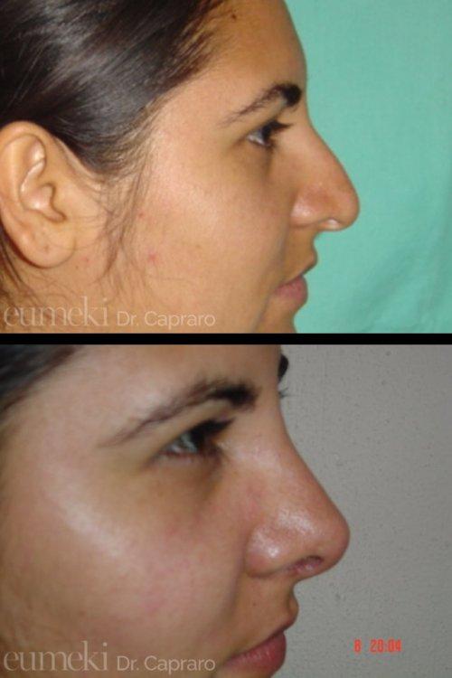 Plastica nasale terzo caso