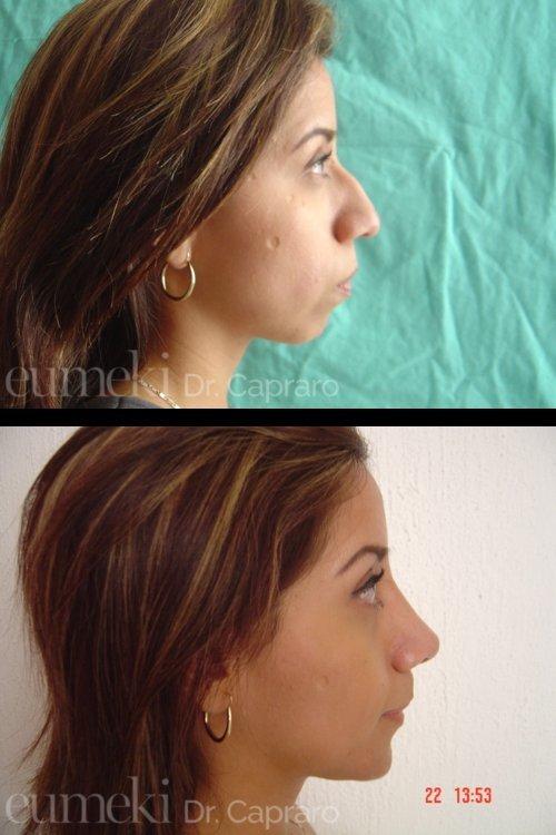 Plastica nasale quarto caso