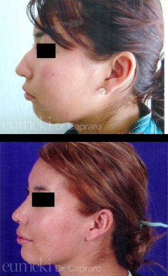 Plastica nasale sesto caso