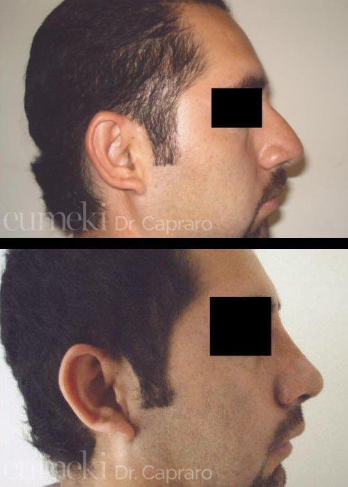 Plastica nasale ottavo caso