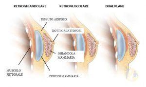 Posizionamento delle prostesi nel lifting del seno