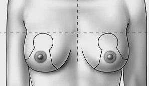 Intervento di riduzione del seno
