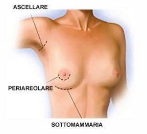 Tre possibili zone di incisione per l'inserimento delle protesi per l'aumento del seno