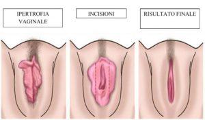 labioplastica